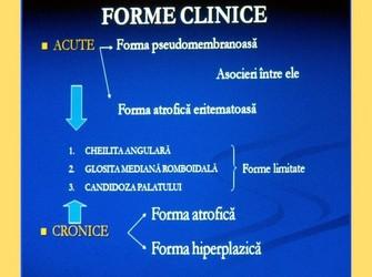 Suport curs patologie orala infectii specifice medicina