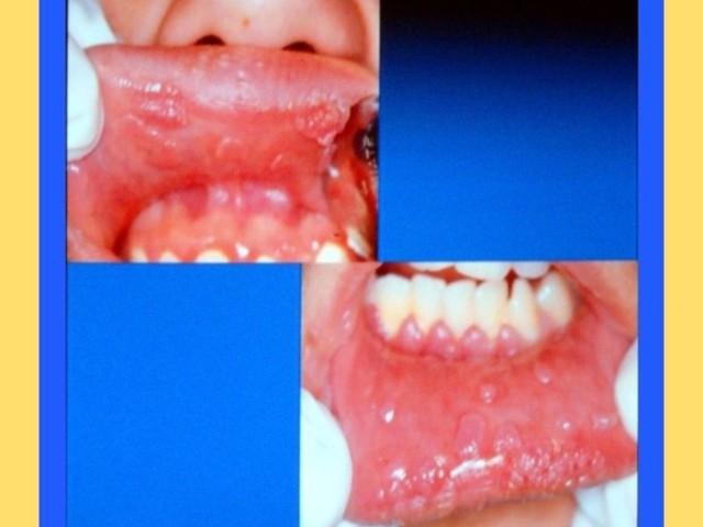 Suport curs patologie orala infectii virale medicina